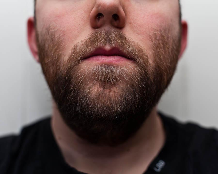 Skjegget fra hele Movember